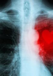 Heart_x-ray